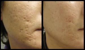 post acne