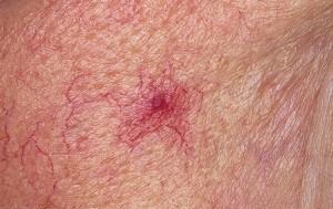 spider-veins