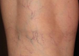 spider-veins2