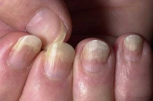 treatment for fungus